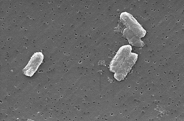 某些抗生素组合如何打败超级细菌