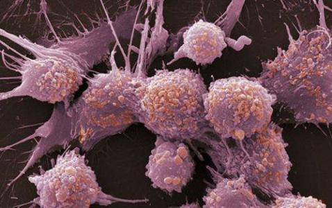 专家发现 几乎所有人身体里都有很多变异细胞